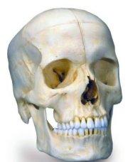 3BA281-schedel