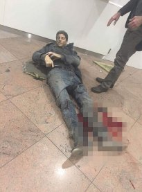 Brussels_leg_wound_3598775b