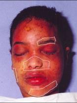 Meisje van Teteringen 2 (2) Alsof afgedekt geweest (pleisters oid)