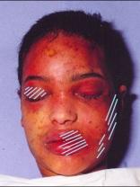 Meisje van Teteringen 2 (3) Opgezwollen