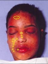 Meisje van Teteringen 2 (4) blaren of wrijfwonden oid